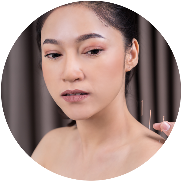 Die Akupunkturnadeln werden wenige Millimeter in die Haut und das Unterhautgewebe gestochen. Ein leichter Schmerzreiz oder eine andere Reizwahrnehmung ist durchaus gewünscht.